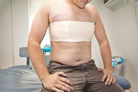 мужчина после операции по удалению гинекомастии