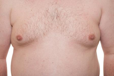грудь мужчины с заболеванием ложная гинекомастия