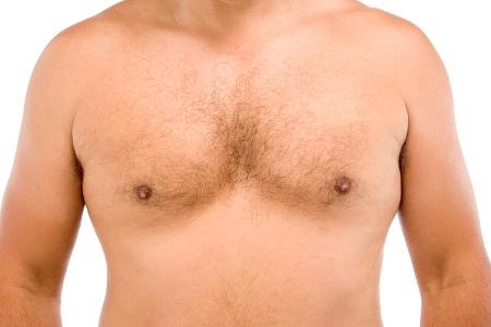 грудь мужчины с заболеванием гинекомастия