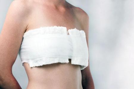 масэктомия при раке груди