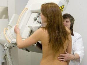 врач проводит маммографию