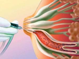 ввод контрастного вещества в протоки молочной железы
